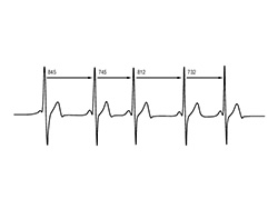 دیوارها می توانند به ضربان قلب شما گوش فرا دهند
