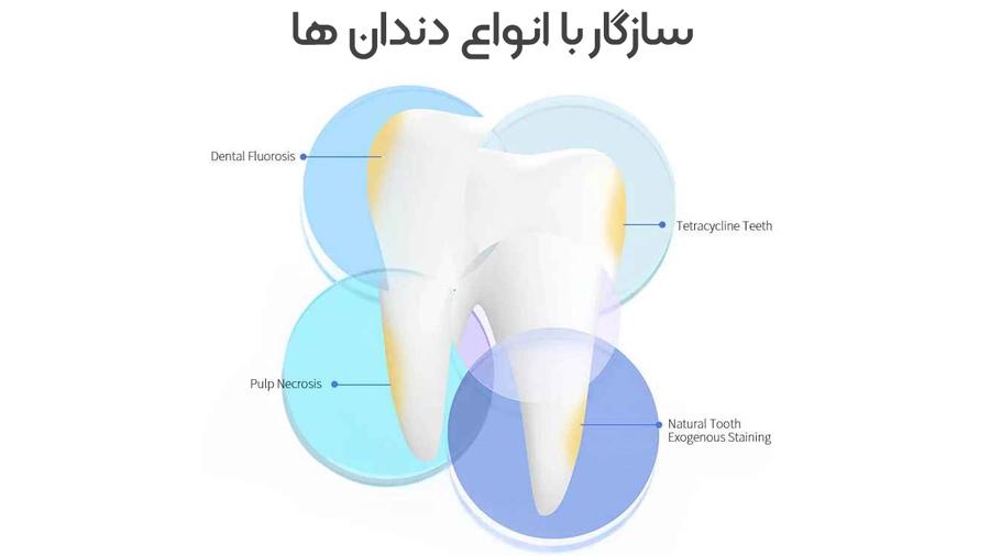 سفید کننده دندان شیائومی Xiaomi Dr.Bei W7 Ultrasonic Teeth Whitener White سازگار با انواع دندان ها